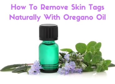 Oregano   a powerful oil that can remove skin tags & other unsightly blemishes